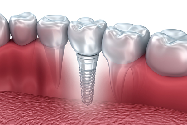 implant dentistry in Lakewood